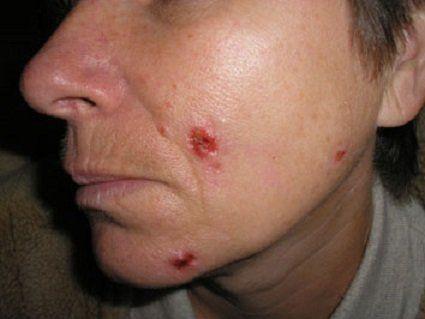 Реальна історія зцілення від раку шкіри