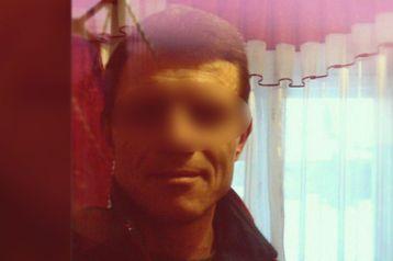 Російський  «Ганнібал Лектор» 4 години катував знайому: відкусив ніс і вуха