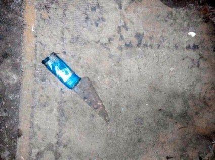 На Рівненщині неадекватний чоловік напав на сусідку з ножем