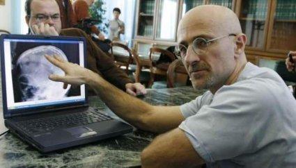 Першу в світі пересадку голови людини провели в Китаї