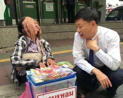 Жінка з «розталим» обличчям відмовилася від допомоги пластичних хірургів