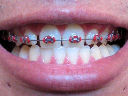Криві зуби можна і треба рівняти не тільки в дитинстві