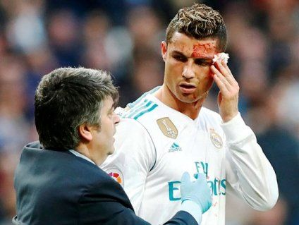 Відомий футболіст травмувався напередодні фіналу Ліги чемпіонів