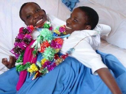 Сіамські близнючки померли з різницею у 15 хвилин