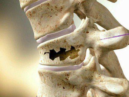 Відтепер перелом хребта лікуватимуть цементом