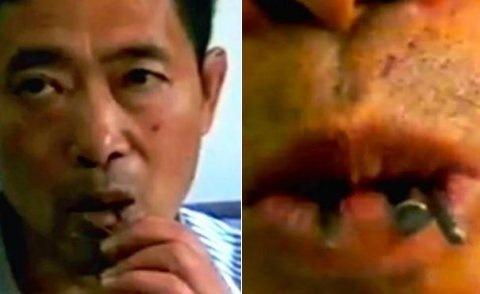 Курйозний випадок в Китаї: чоловік наївся цвяхів через нерозділене кохання