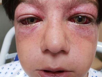Британський хлопчак дістав крововилив у очі, коли повторив трюк з YouTube