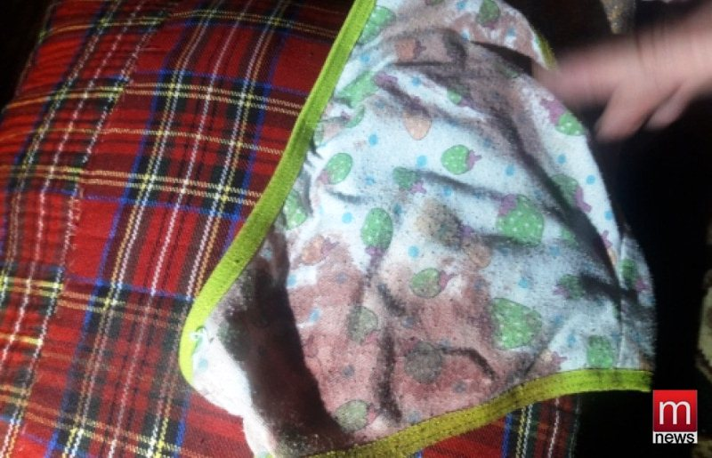 У Маріуполі щур покусав дитину фото 3
