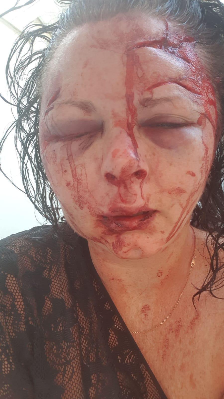 Побита британська туристка у Туреччині