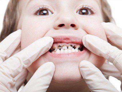 В Ужгороді дитина два дні ходила з голкою в горлі, яку забув стоматолог