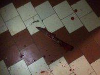 Вдаривши ножом студента, учень коледжу перерізав собі вени (фото 18+)