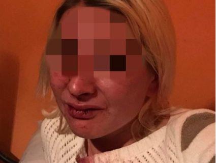 Довго несла каву: на Закарпатті відвідувач жорстоко побив працівницю кафе (фото, відео)