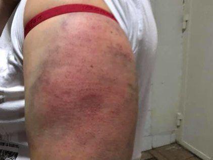 У столиці поліцейські жорстоко побили жінок (ФОТО)