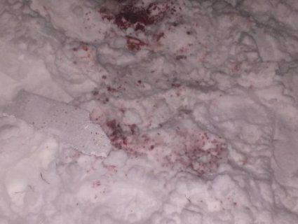 Кров на снігу: лікарі рятують харків'янина, якому феєрверком відірвало кисть і пошматувало лице