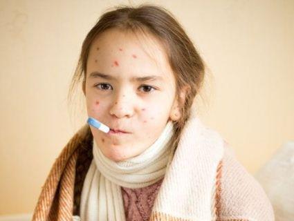 На Запоріжжі хвора на кір дівчинка годину сиділа в загальній черзі до педіатра