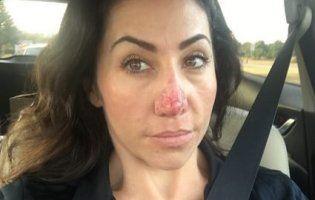Через величезний ніс жінка на кілька років сама себе закрила вдома