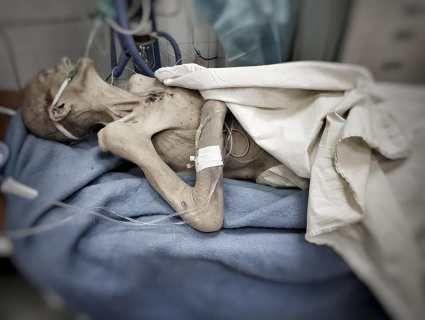 Фото, які жахнули Україну: син довів матір до стану «живої мумії»