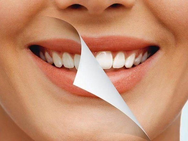 Відбілювання зубів: кому це заборонено