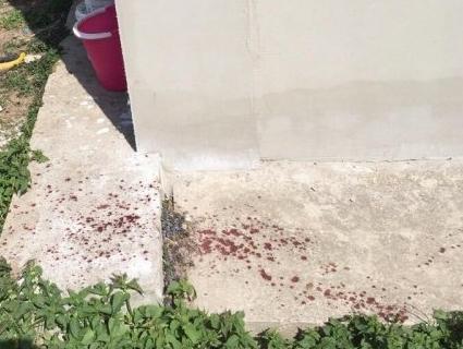 На Рівненщині вибухнув гранатомет – чоловіку відірвало пальці