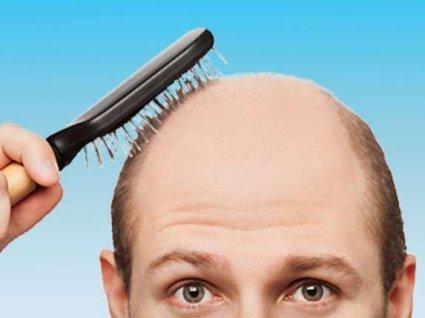 Як побороти випадіння волосся