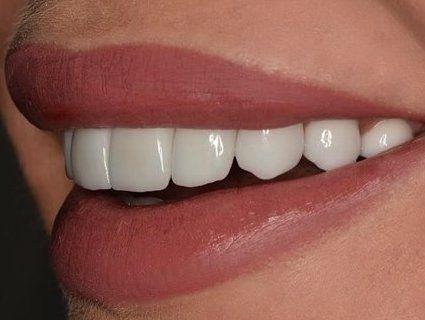 Топ продуктів, які зміцнюють зуби