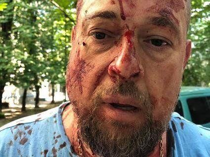 В Харкові активіста побили кастетами по голові (фото, відео)