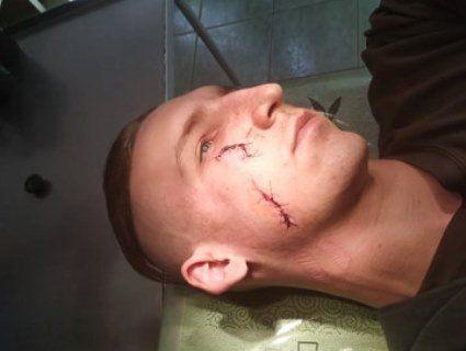 Нічне патрулювання: у Луцьку почикрижили лице самооборонівцю (фото)