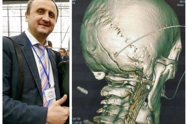 За відмову бути понятим поліцейський проломив людині череп (фото)