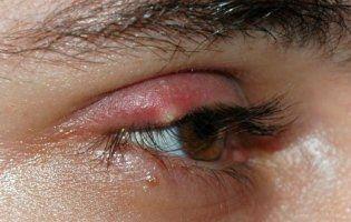 Потерти обручкою, плюнути в око, показати дулю: як лікують ячмінь – Супрун