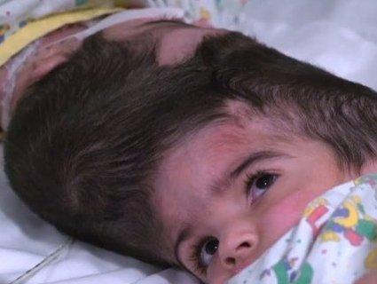 Роз'єднали сіамських близнючок зі зрощеними головами (відео)