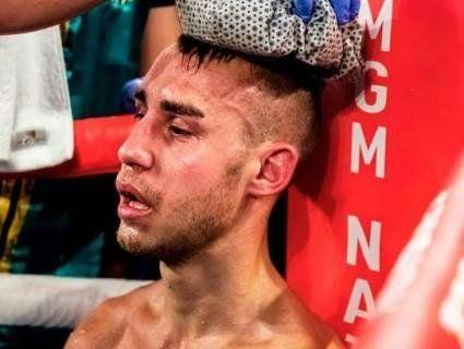 «Сумний для боксу тиждень»: два відомих боксери померло від спортивних травм