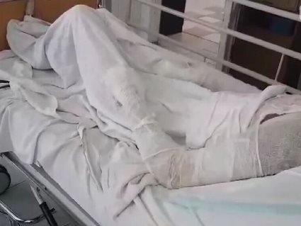 У Запоріжжі чоловік скалічив молоду дружину: вилив їй на обличчя окріп