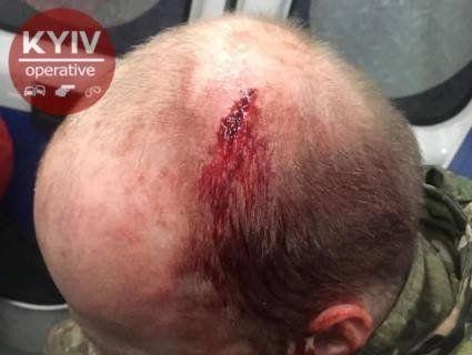 «Вокзальна мафія»: у Києві роми побили поліцейських просто у відділку (фото)