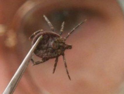 Підступна хвороба: у двох волинян не відразу діагностували вірусний енцефаліт