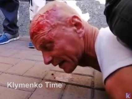 Крики «Ганьба!» під час промови Зеленського: «копи» розбили обличчя ветерану (відео)