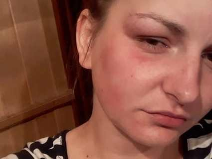 У Львові побили жінку за те, що не пригостила чоловіків…сигаретою