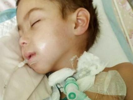 Від усклaднення після кору помер п'ятирічний хлопчик