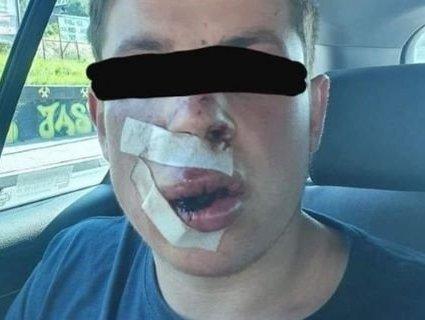 Били навіть непритомним: у Польщі жорстоко побили українського студента