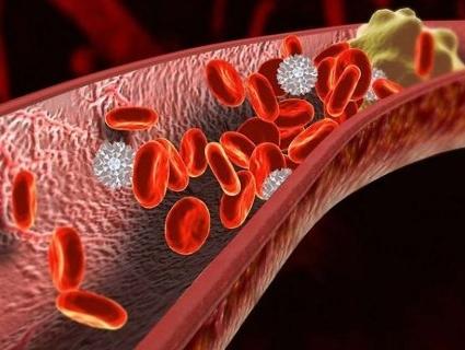 Смертельні тромби: як уникнути їх утворення