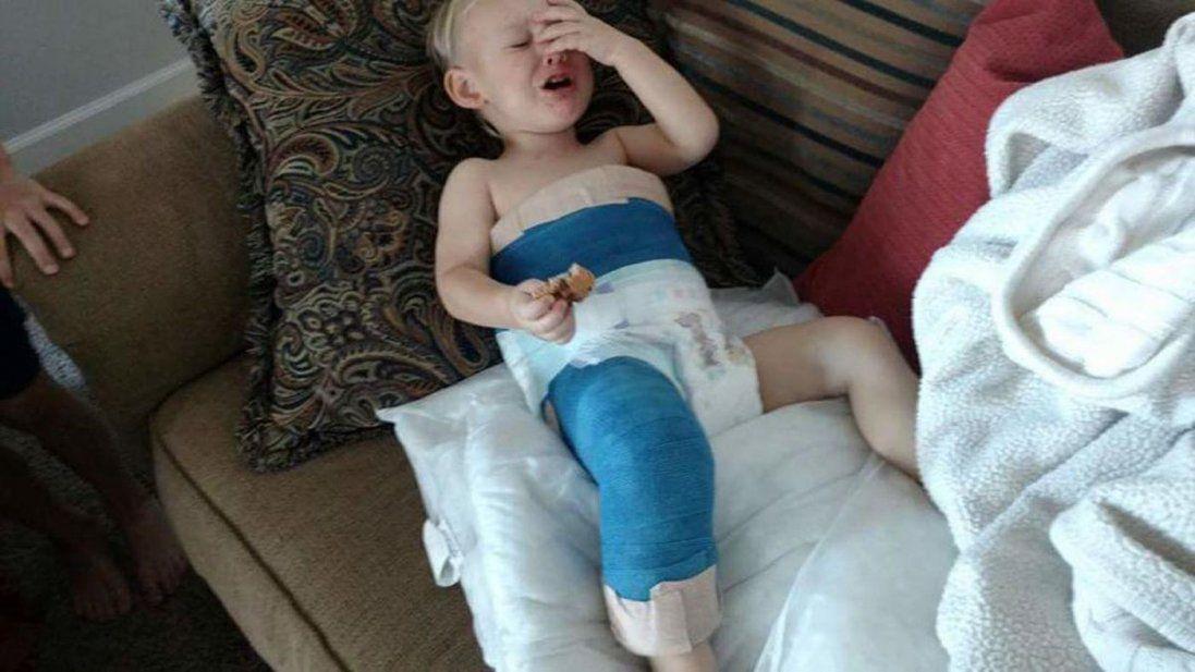 Хлопчика, якого переїхав КамАЗ, від інвалідності врятувала селянка-костоправ