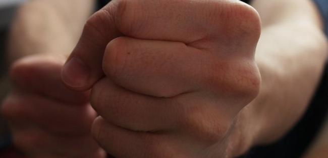 На Волині до смерті забили 18-річного хлопця