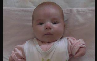 Немовля, яке народилося з вадами рук, і від якого відмовилися, таки забрали батьки