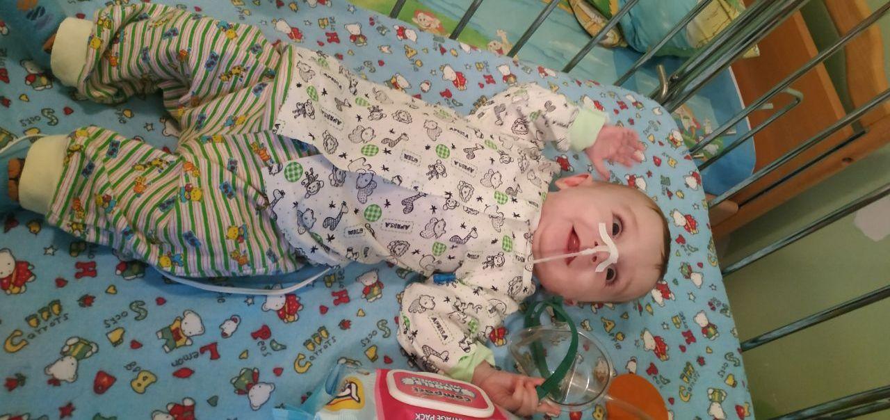 На Волині 7-місячний малюк після трьох операцій підхопив рідкісну хворобу