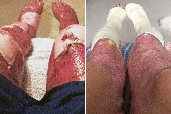 Ноги Джейні Насіменто після операції
