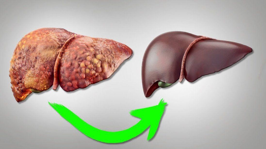Прості рецепти, які допоможуть оздоровити печінку