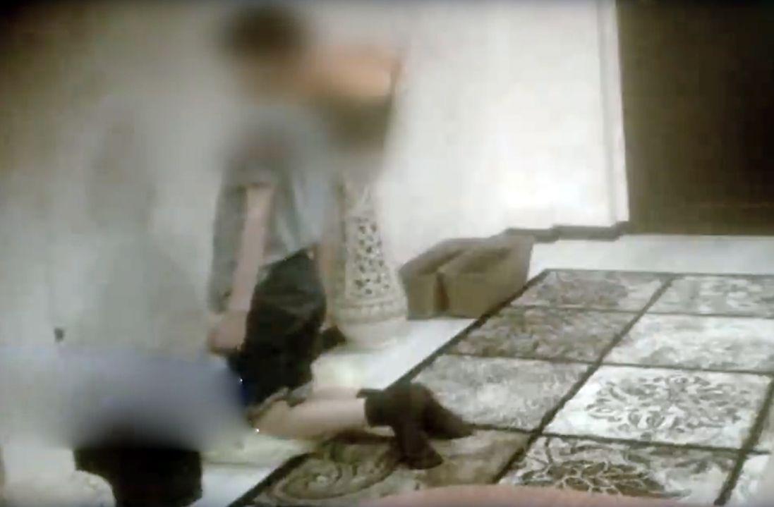«Наказували»: в Росії дитина стояла на гречці, доки крупа не вросла їй у коліна (фото)