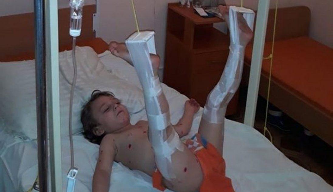 У київській лікарні на малюка впали металеві двері (фото)