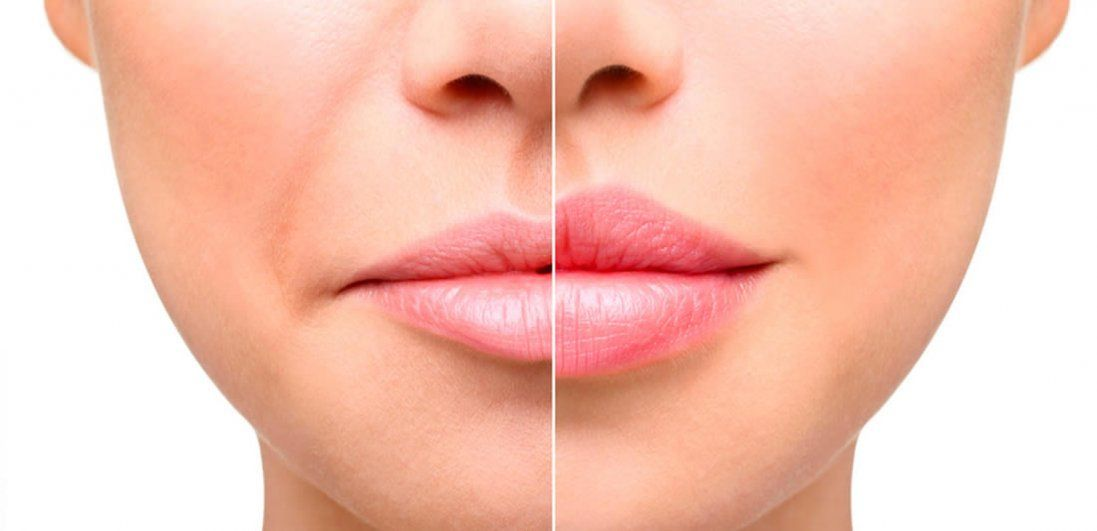 Як збільшити губи та зробити їх пухлими?