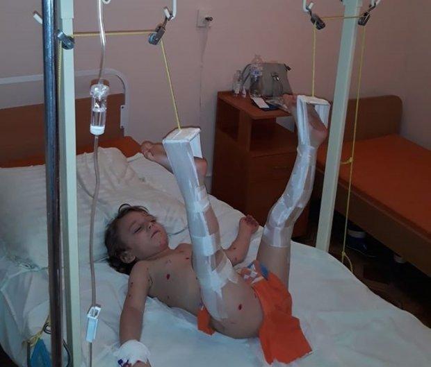 У дитини перелом правого стегна/Фото:Unsplash