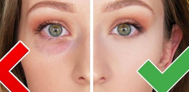 Поради, які допоможуть позбутися мішків під очима